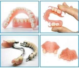 Съемные зубные протезы: плюсы и минусы